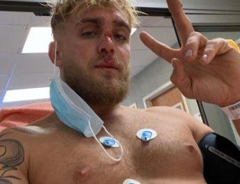 Jake Paul: Με σπασμένη μύτη 20 μέρες πριν το ματς;;